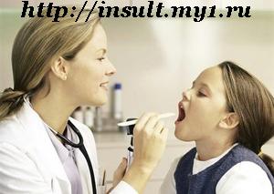 фото - лечение ангины