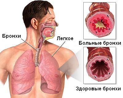 фото - бронхиальная астма